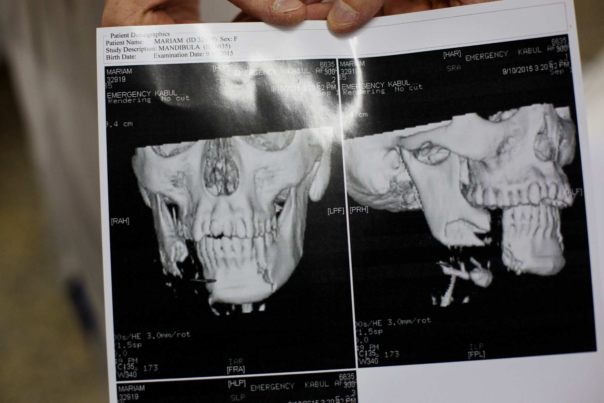 Nurse Claire Hayzelden holds a CT scan for Maryam, 22, from Ghazni, who suffered a bullet to the face and a broken jaw while 7 months pregnant.