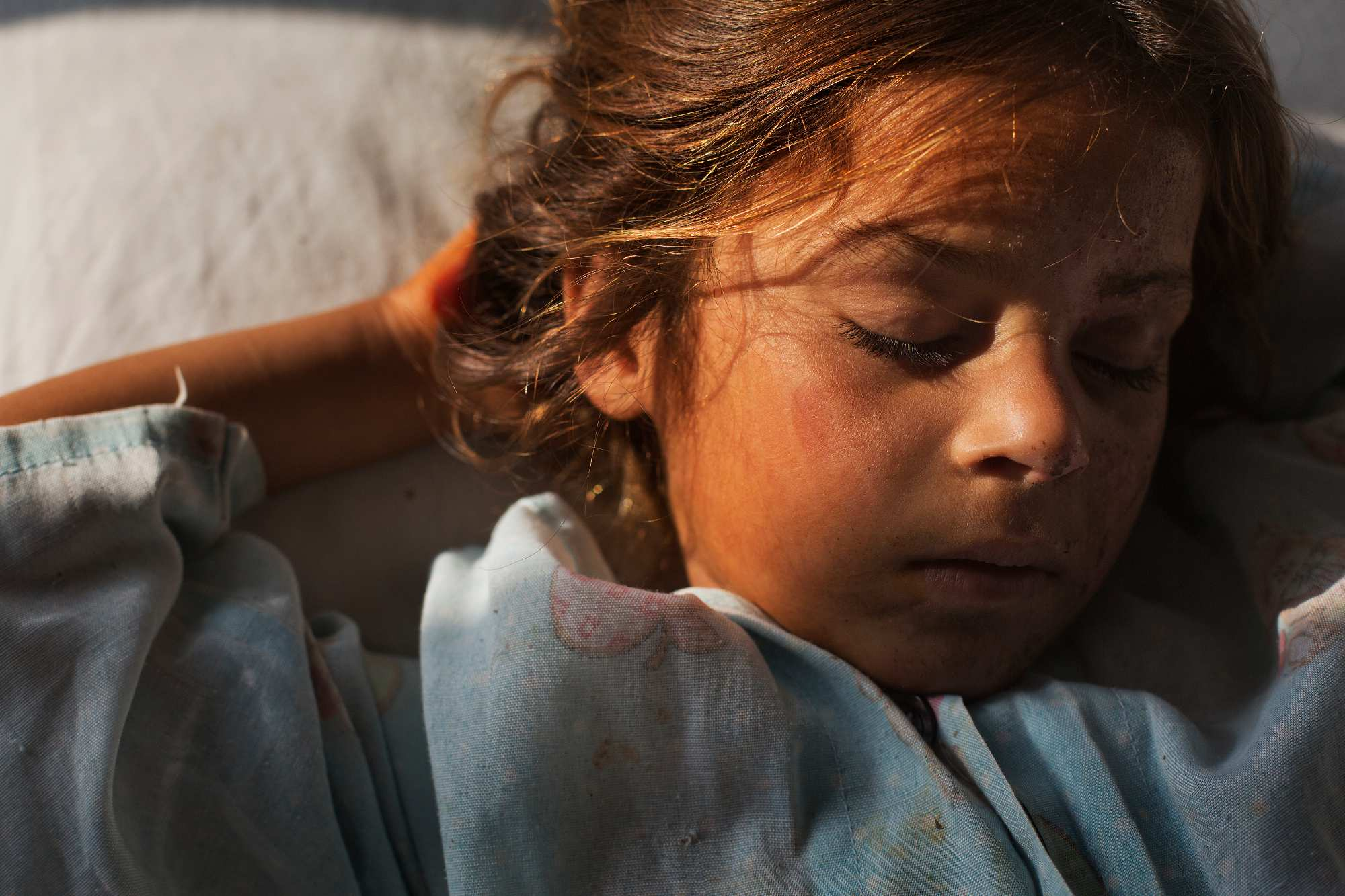 Yasamine, 5, from Logar, sleeps in C ward at Emergency. She suffered two broken legs and her face was burned in a blast that killed her aunt and uncle and injured her 8-month-old cousin, Abdullah.