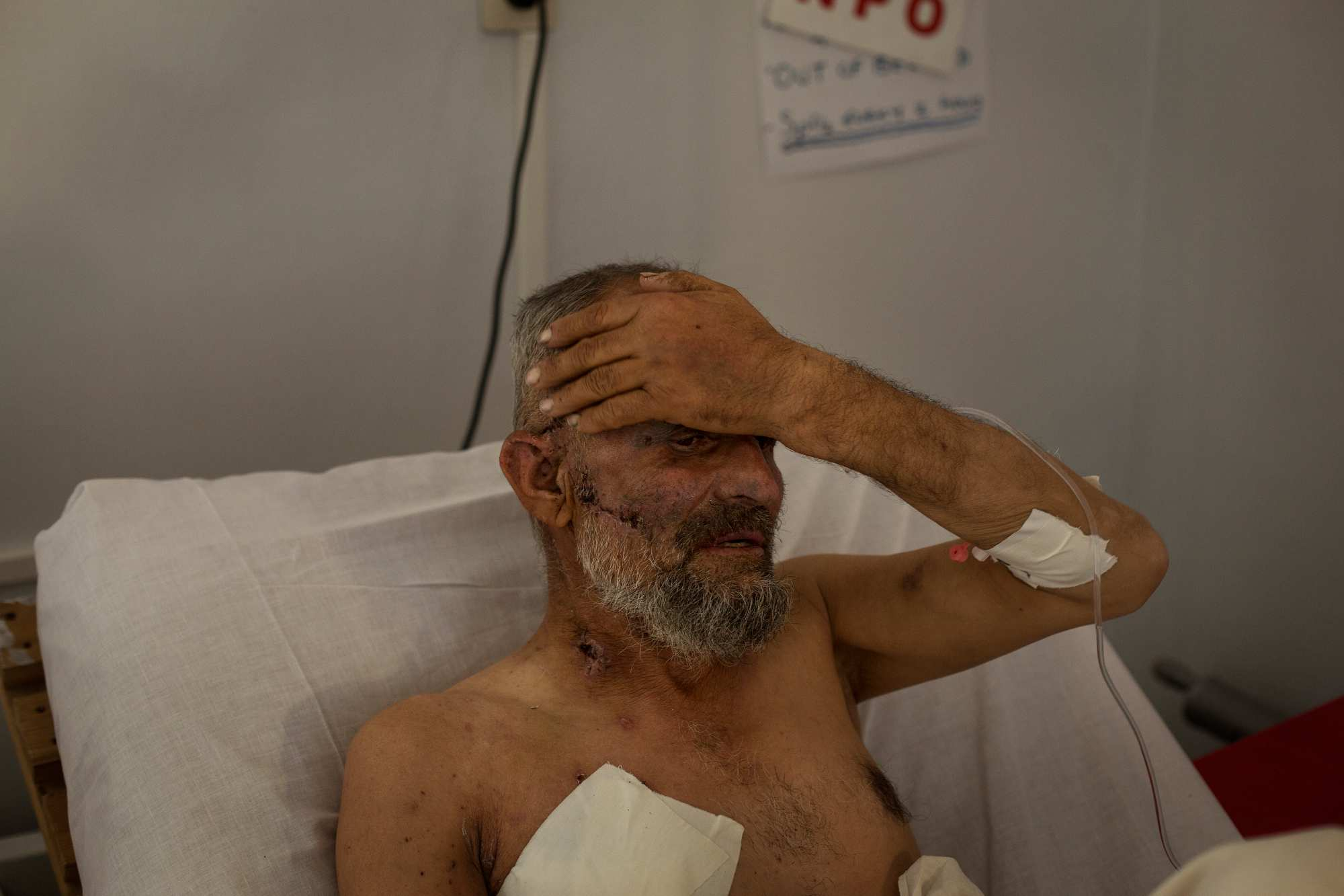 Kabal, 65, from Ghazni, who suffered multiple shell injuries, rests in bed.