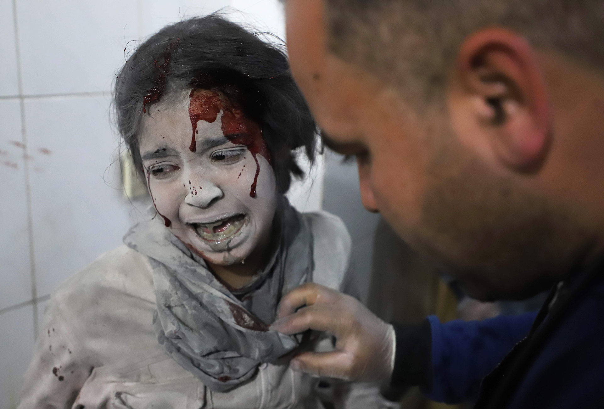 A Syrian girl receives treatment