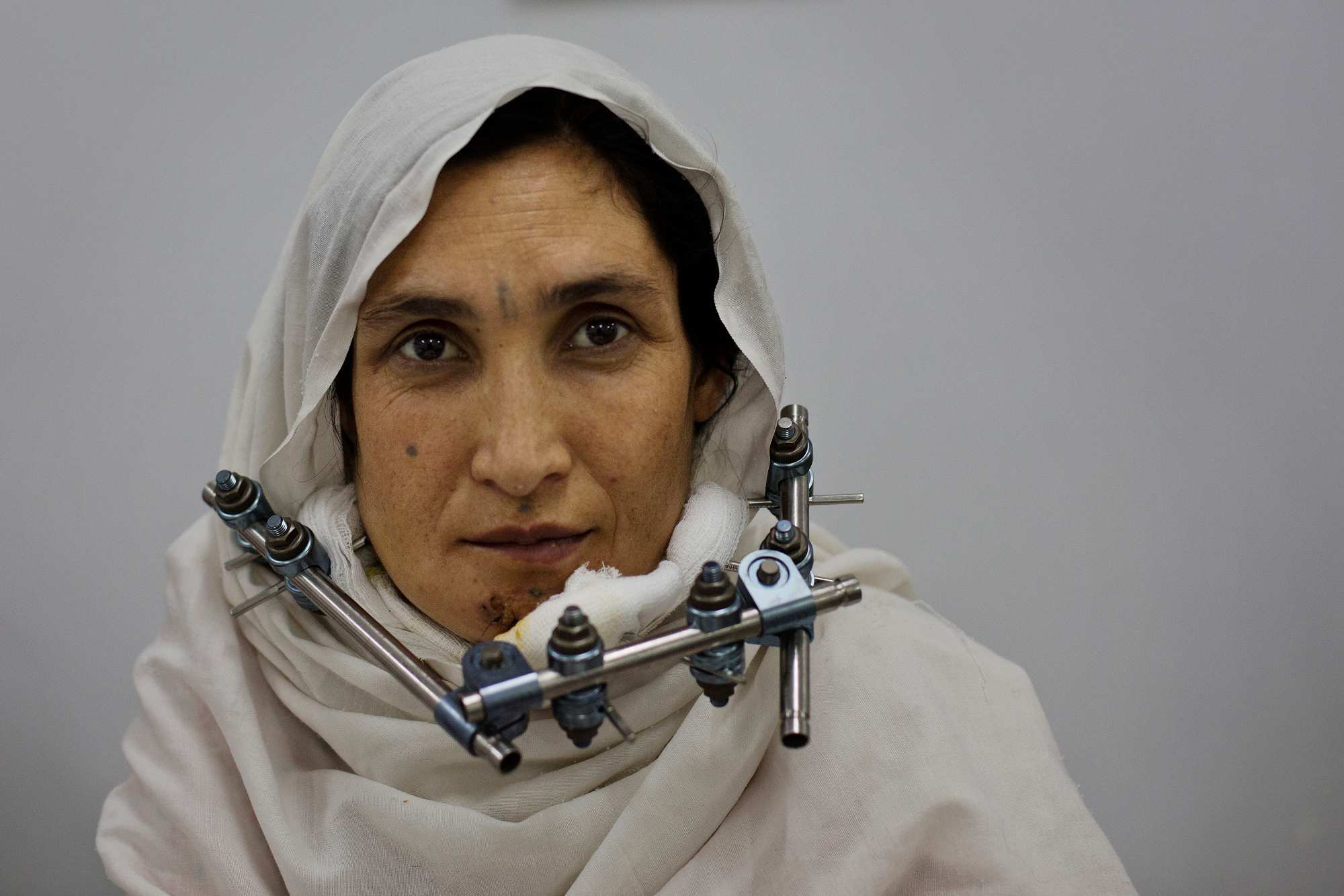 Maryam poses for a photograph after surgery to repair her shattered jaw.