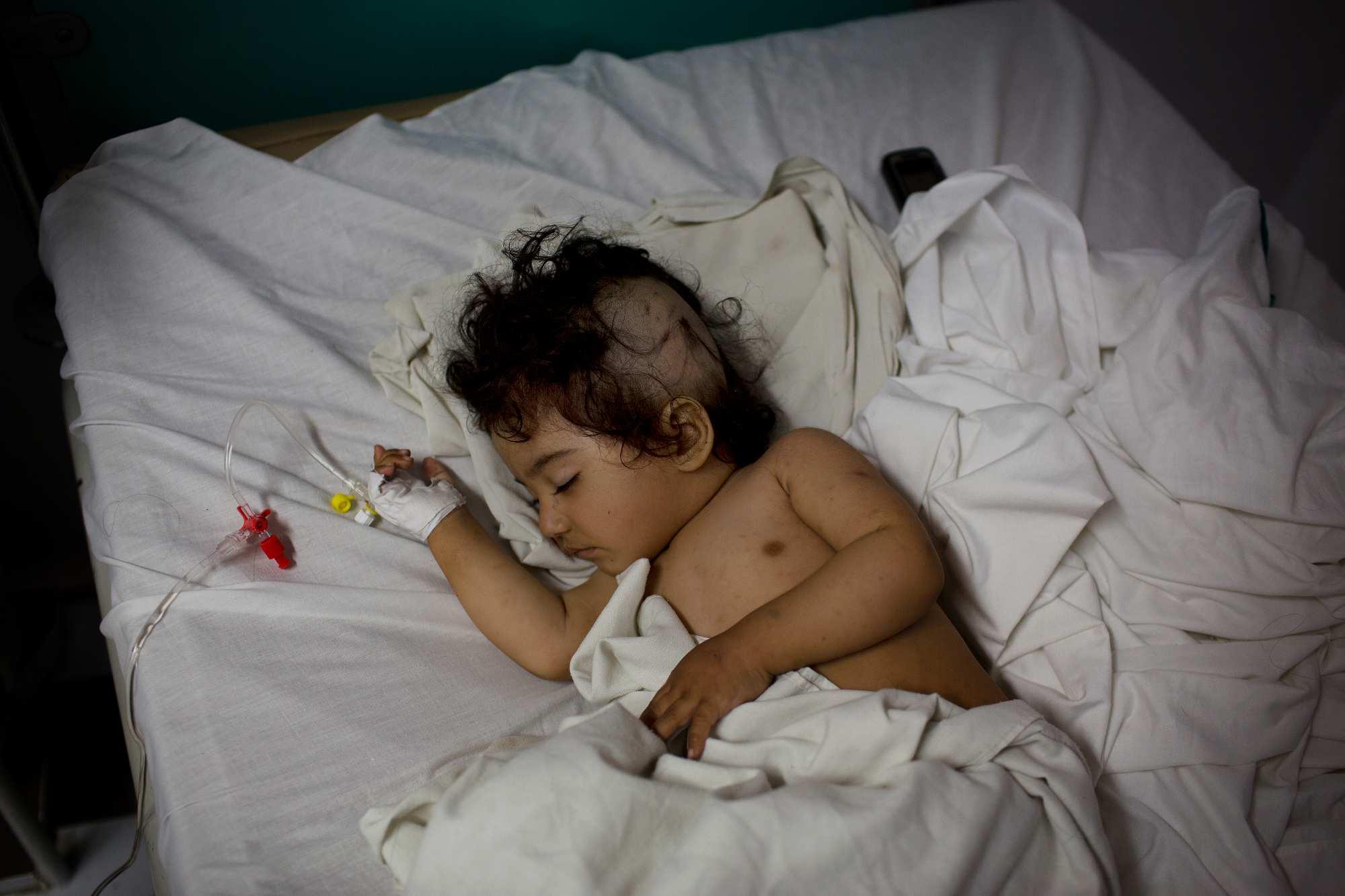 Nasirullah sleeps in the sub-Intensive Care Unit.