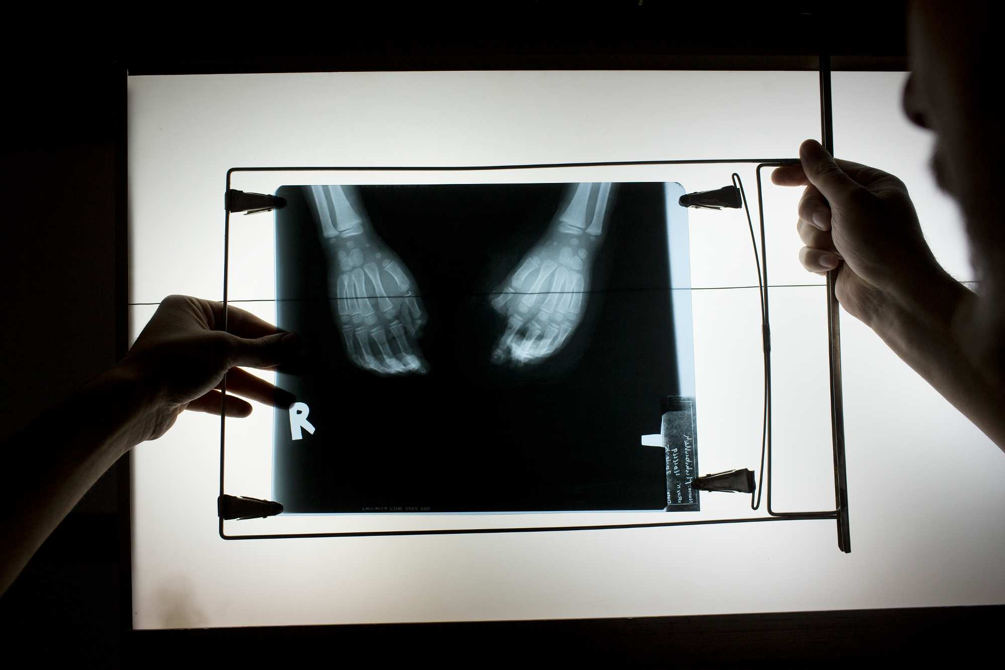 Doctors review Muhebullah's x-rays before a surgery to amputate some of his fingers.